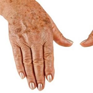Причины появления пигментных пятен на руках и способы борьбы с ними