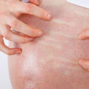 Особенности лечения псориаза у беременных