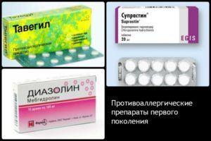 Антигистаминные препараты при аллергии