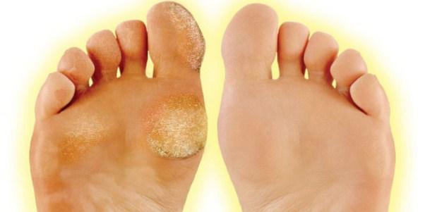 Натоптыши на мизинцах ног лечение
