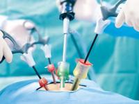 лапароскопия кисты