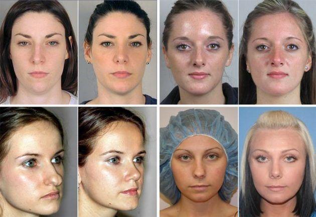 Носовые перегородки до и после хирургического вмешательства