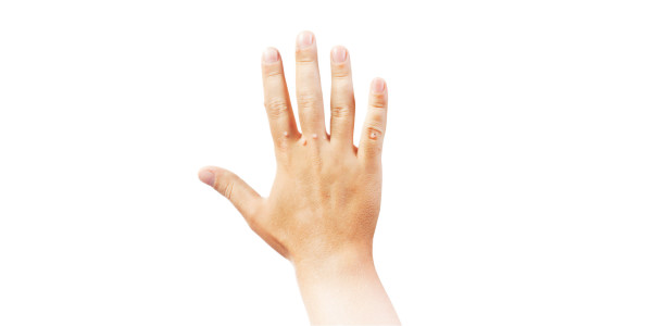 Методы борьбы с бородавками на руках