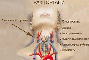Карцинома горла