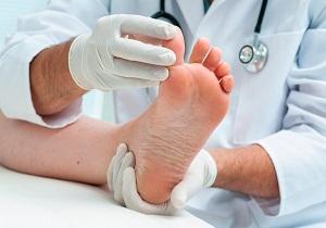 диабетическая ангиопатия код по мкб 10