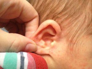 Корочки в ушах