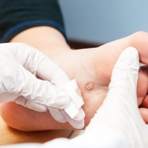 Причины появления и методы лечения красных папиллом