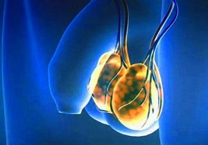 Эмбриональный рак яичка прогноз