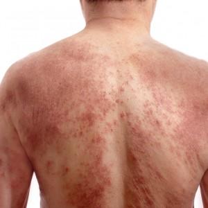 Как избавиться от зудящих волдырей на коже
