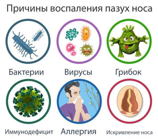 Инфекции пазух носа