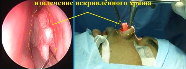 Щадящая эндоскопическая септопластика