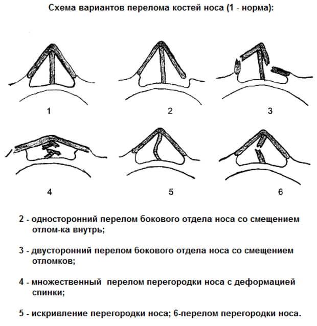 Основные признаки перелома носа