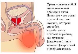 воспаление придатка яичка у мужчин