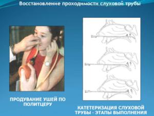 Восстановление проходимости слуховой трубы