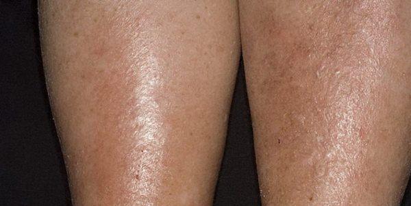 ?Особенности терапии венозного (варикозного) дерматита