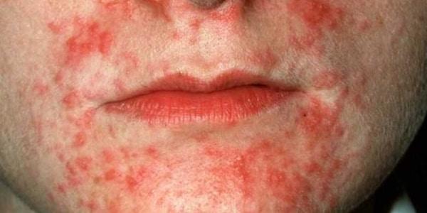 Дерматит: симптомы и признаки на фото