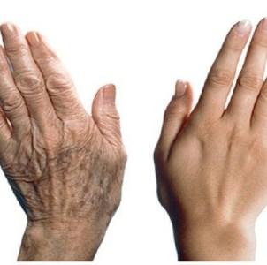 Основные причины появления темных пятен на коже