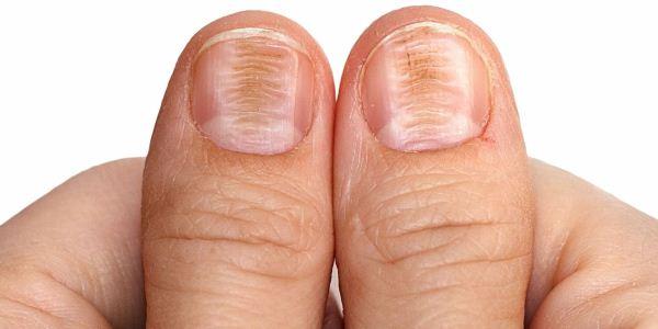 Почему возникают и как лечить полосы на ногтях