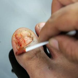 Особенности и правила лечения грибка ногтей при помощи йода