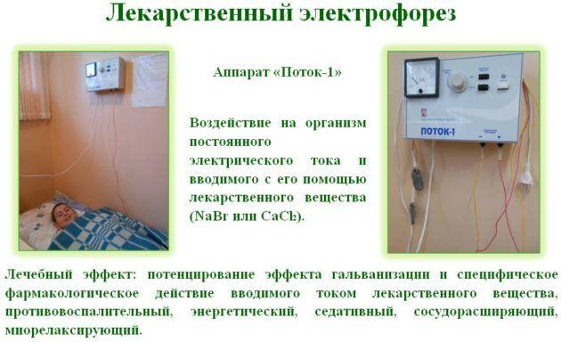 Самым эффективным лечением при тугоухости является электрофорез