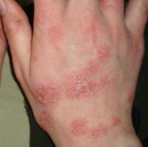 Пятна красного цвета на теле: причины появления и методы лечения