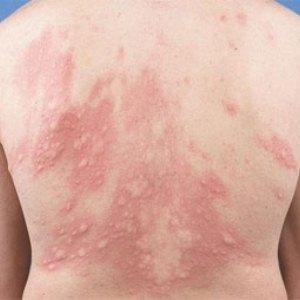 Причины, симптоматика, лечение аллергической крапивницы