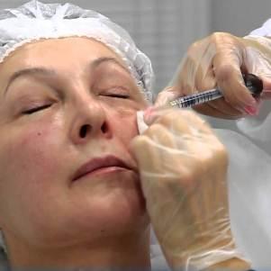 Правила проведения и эффективность уколов от морщин