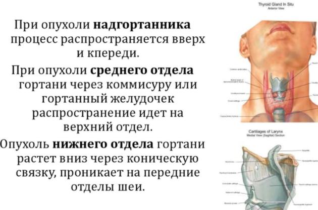Опухоли верхнего отдела гортани