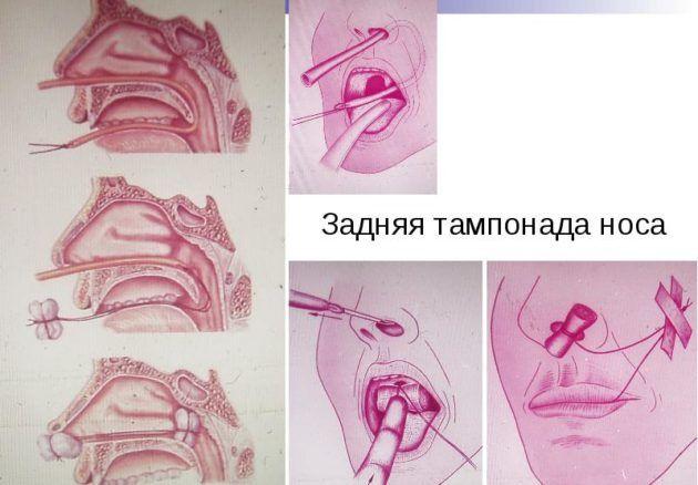 Техника выполнения тампонады носа