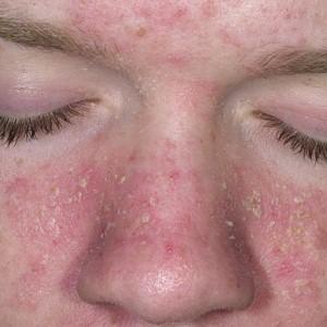 Себорейный дерматит: общие понятия, причины развития и признаки болезни