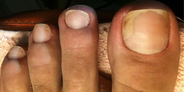 Быстрые и эффективные способы лечения грибка ногтей в домашних условиях