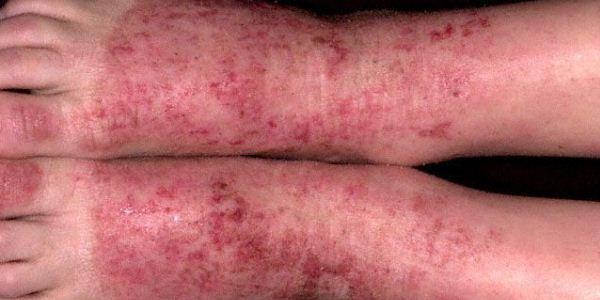 Методы лечения варикозной экземы