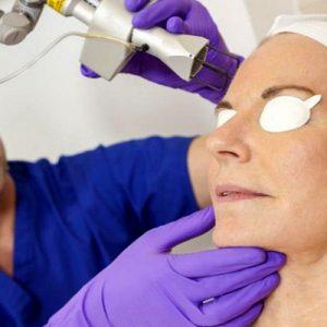 Что такое невус кожи: виды, тактика лечения, профилактика