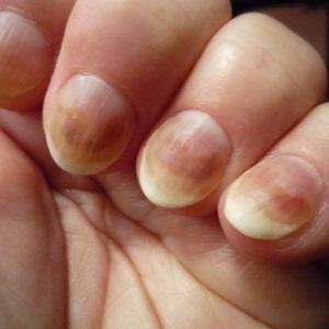 Применение лазера для лечения грибка на ногтях