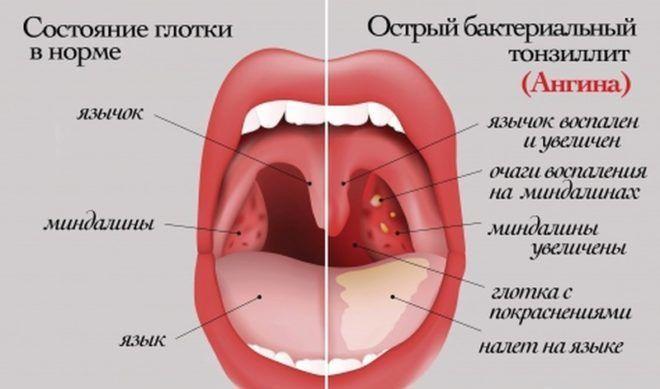 Ангина, как причина воспаленных лимфоузлов