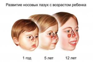 Развитие носовых пазух