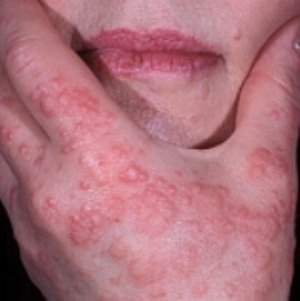 Эритема: симптомы и вид на фото