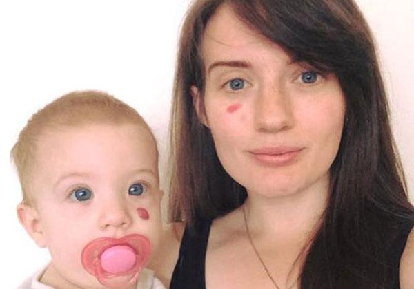 Представляют ли опасность коричневые пятен на теле у детей?
