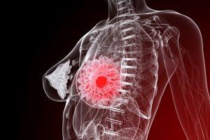 инволютивные изменения молочной железы