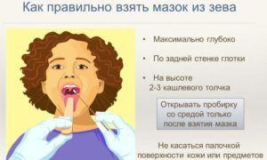 Как правильно взять мазок из зева