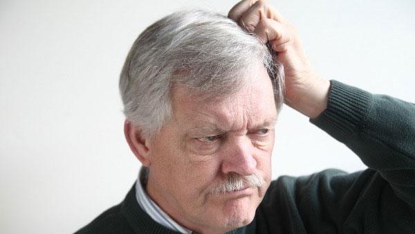 Причины появления и методы лечения невуса сальных желез