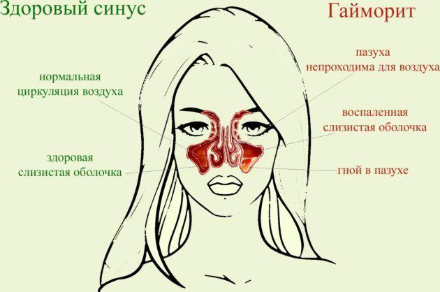 Гайморит может перерасти в очень опасную стадию заболевания, такую как рак носа