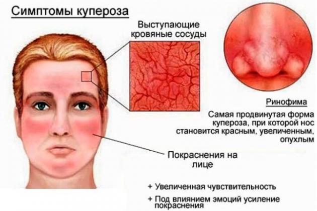 Причины купероза на носу