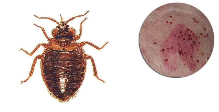 Как выглядит укус клопа на теле человека- фото, признаки, что делать
