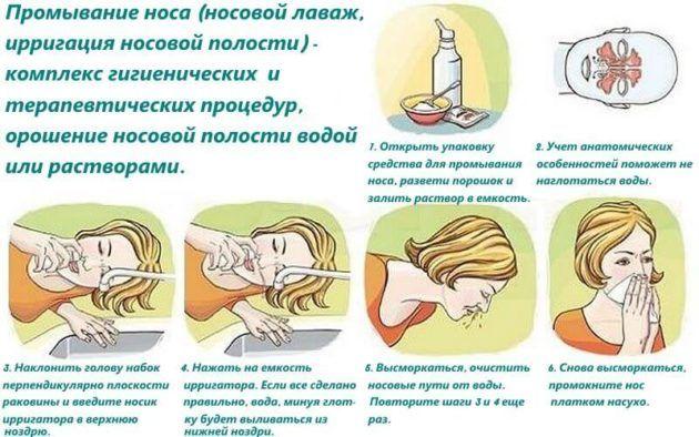 Правила проведения процедуры промывания носа