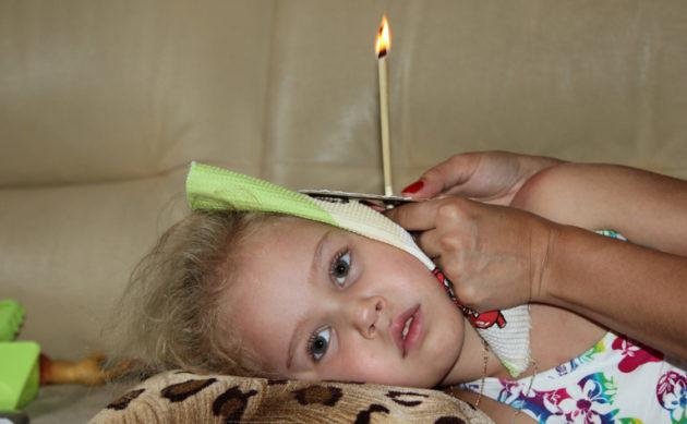 Свечи ушные для детей