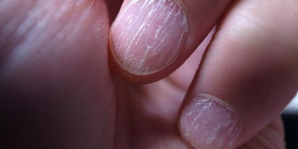 Где и каким образом передается грибок ногтей