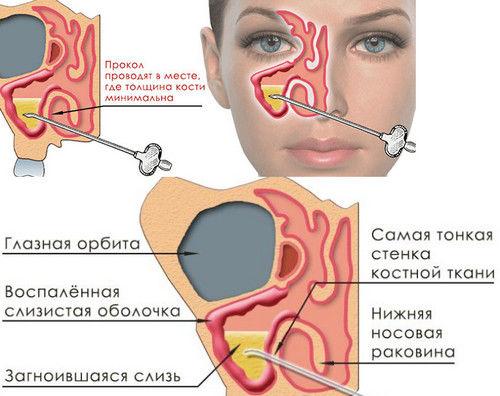 Схема проведения аспирации иглой носа