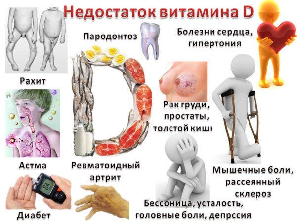 Нехватка в организме витамина D