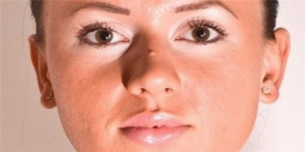 Как быстро избавиться от бородавок на носу